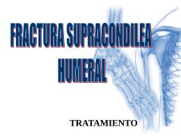 Fractura supracondílea humeral