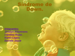 Síndrome de Down. Integrantes: Joselyn Altamirano.