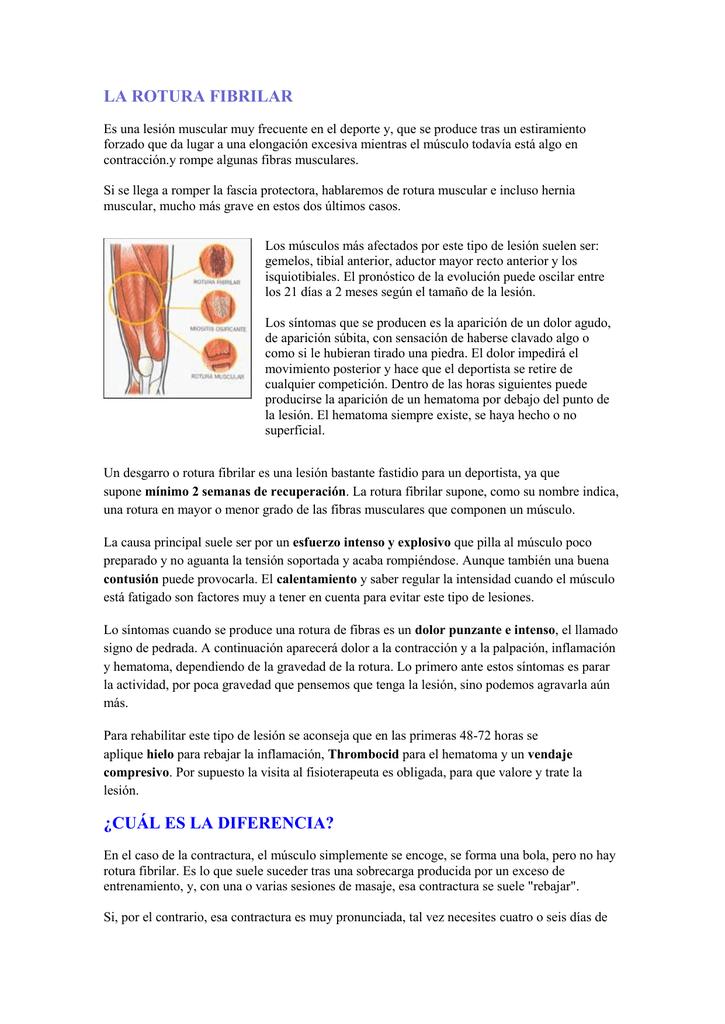 crema para rotura de fibras musculares
