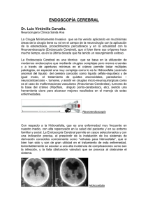 LEA SOBRE ENDOSCOPÍA CEREBRAL