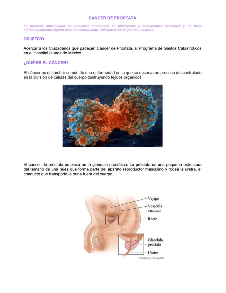 Excepcional Imágenes Anatomía De La Glándula De La Próstata Motivo ...