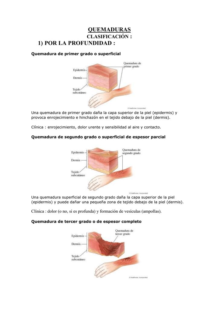 tratamiento de quemaduras de segundo grado pdf