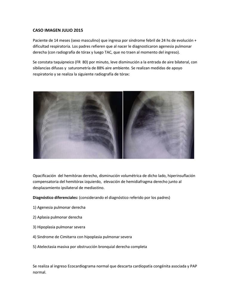 agenesia pulmonar