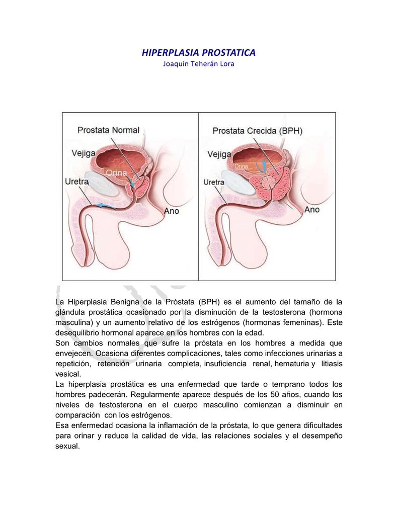 qué hormona causa hiperplasia de la glándula prostática