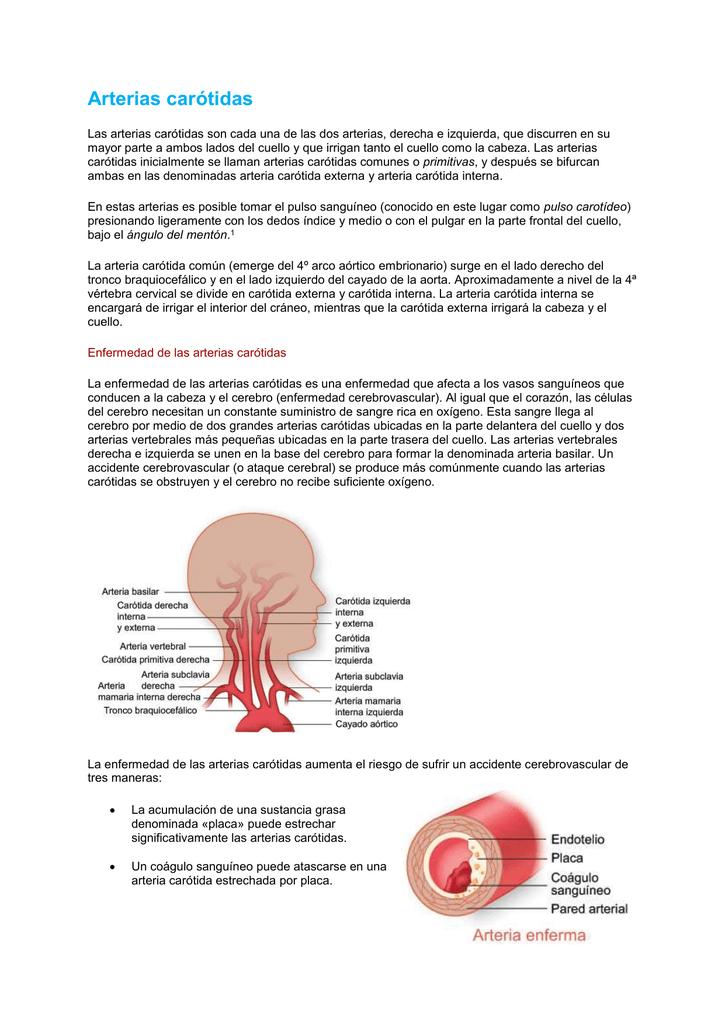 Lujo Arteria Carótida Interna Izquierda Composición - Anatomía de ...