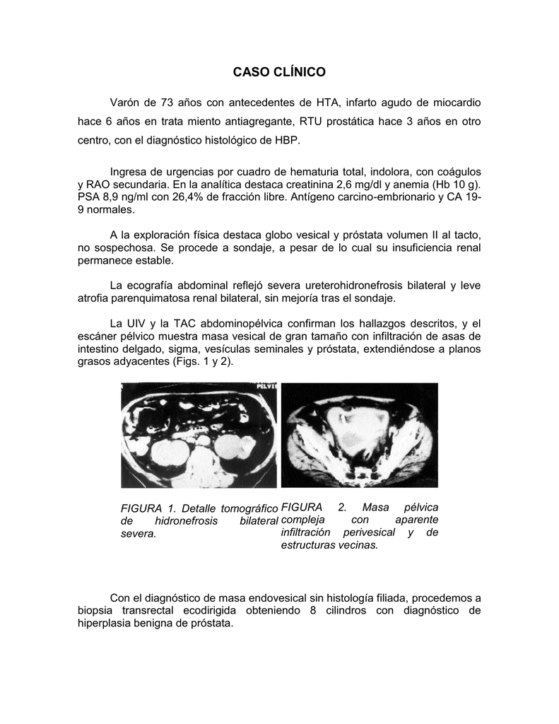 tipo de análisis de sangre para la exploración de creatinina prostática