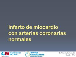 Infarto de Miocardio con Arterias Coronarias Normales