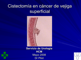 Cistectomia_en_cancer de_vejiga superficial.ppt