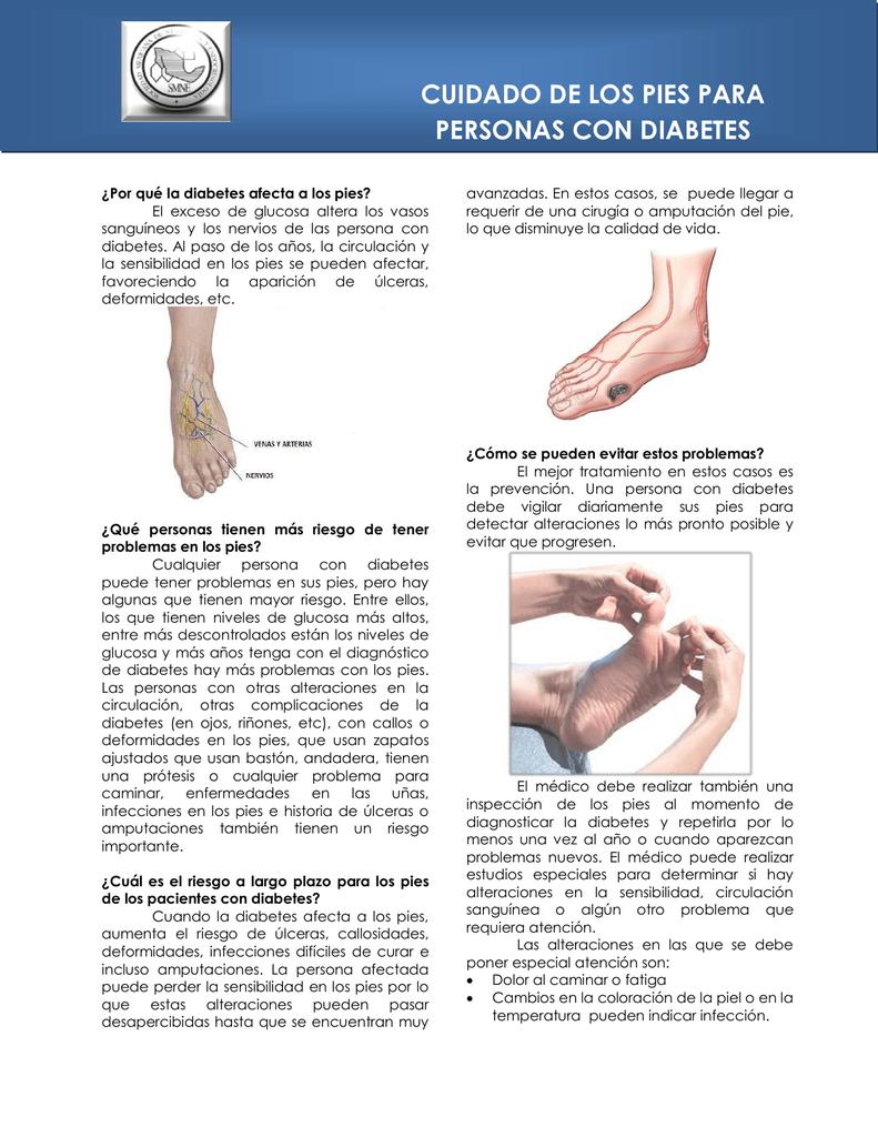 tratamiento de pies para diabetes