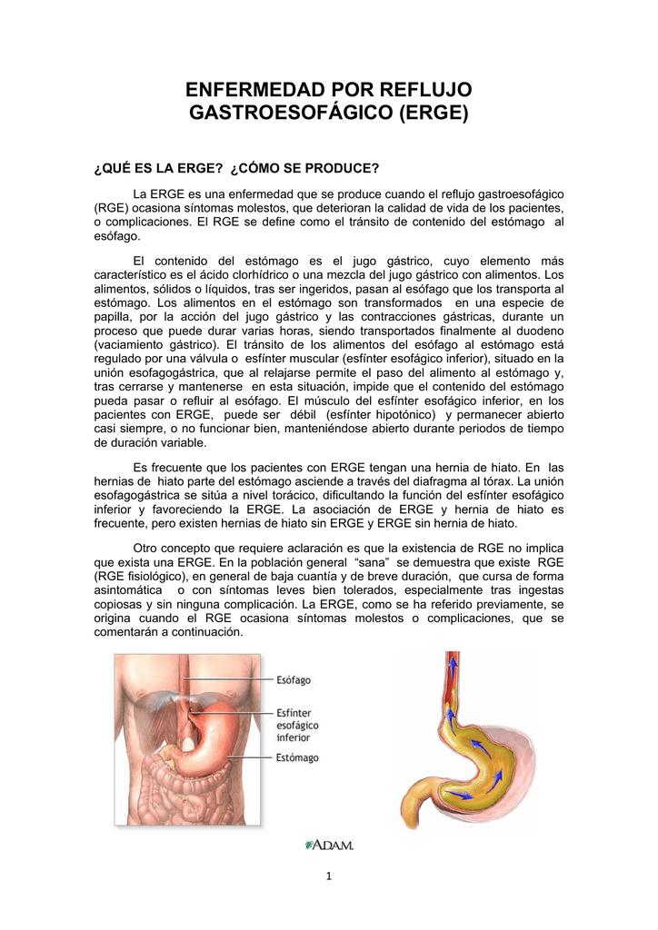 como se produce la hernia del hiato