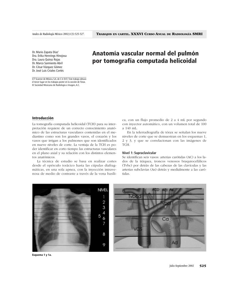Anatomía vascular normal del pulmón por