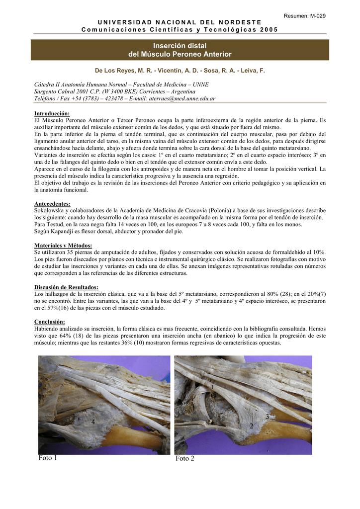 Inserción distal del Músculo Peroneo Anterior