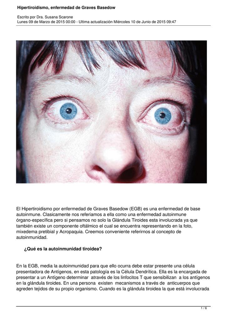la hipotiroidismo es una enfermedad grave