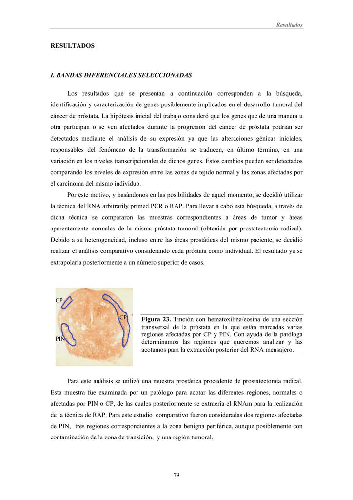 identificación y caracterización de nuevos genes implicados en el