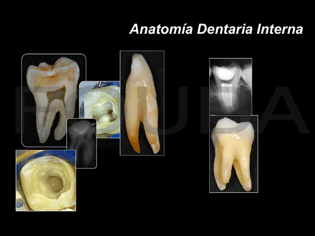 Anatomía Dentaria Interna