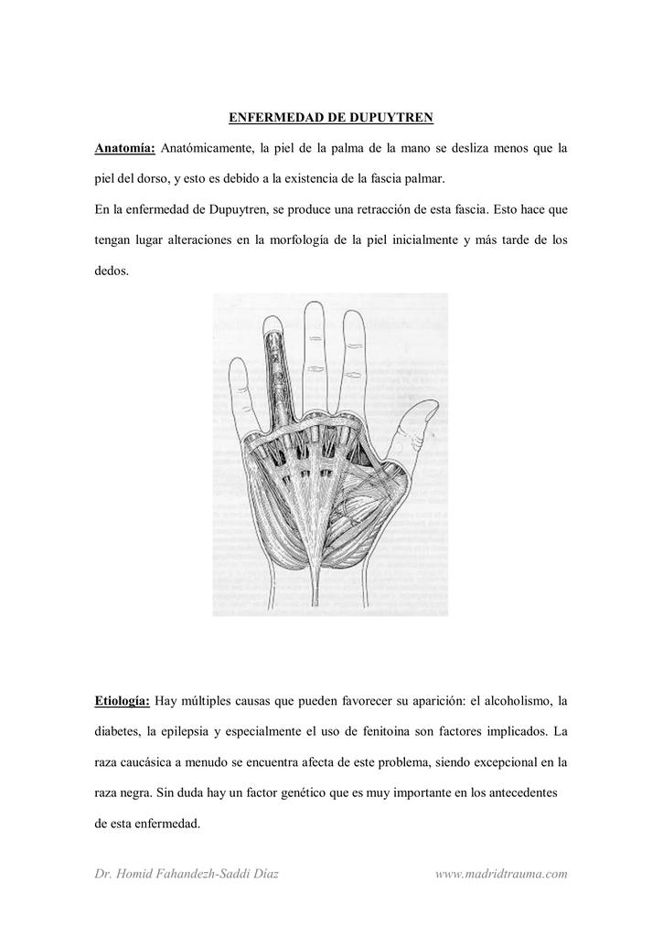 Anatómicamente, la piel de la palma de la mano se desliza menos