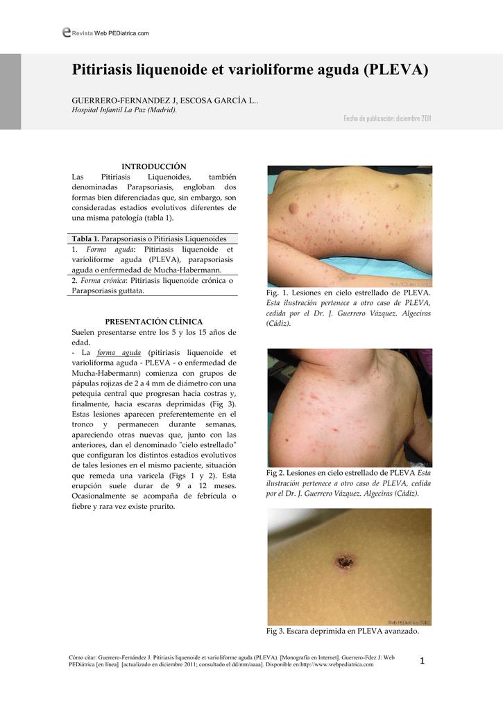 Pitiriasis Liquenoide Cronica Pdf Download