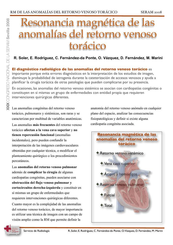 RM de las anomalías del retorno venoso torácico