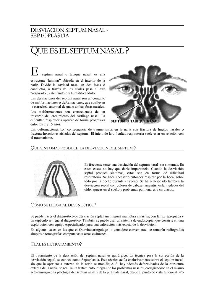 Desviacion de tabique nasal radiografia
