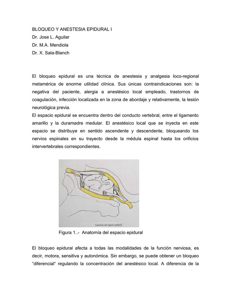 BLOQUEO Y ANESTESIA EPIDURAL I Dr. Jose L. Aguilar Dr. M.A.