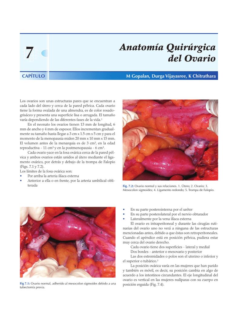 Anatomía Quirúrgica del Ovario