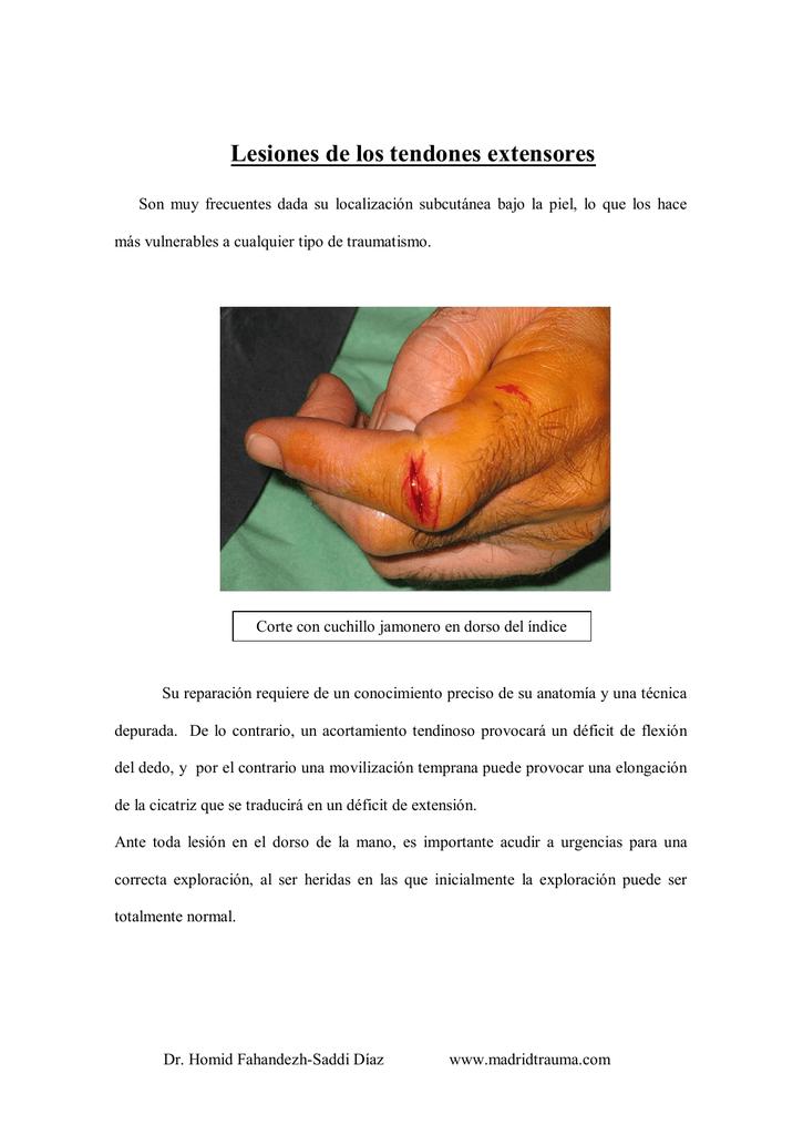 Lesiones de los tendones extensores