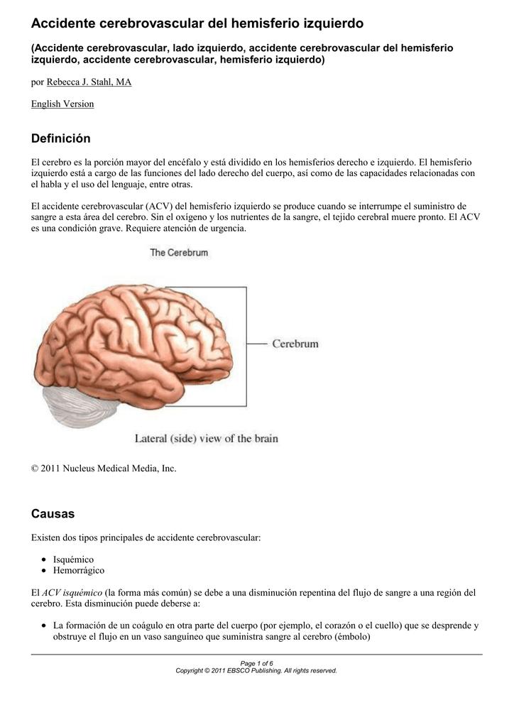 Sangre en el cerebro por accidente cerebrovascular