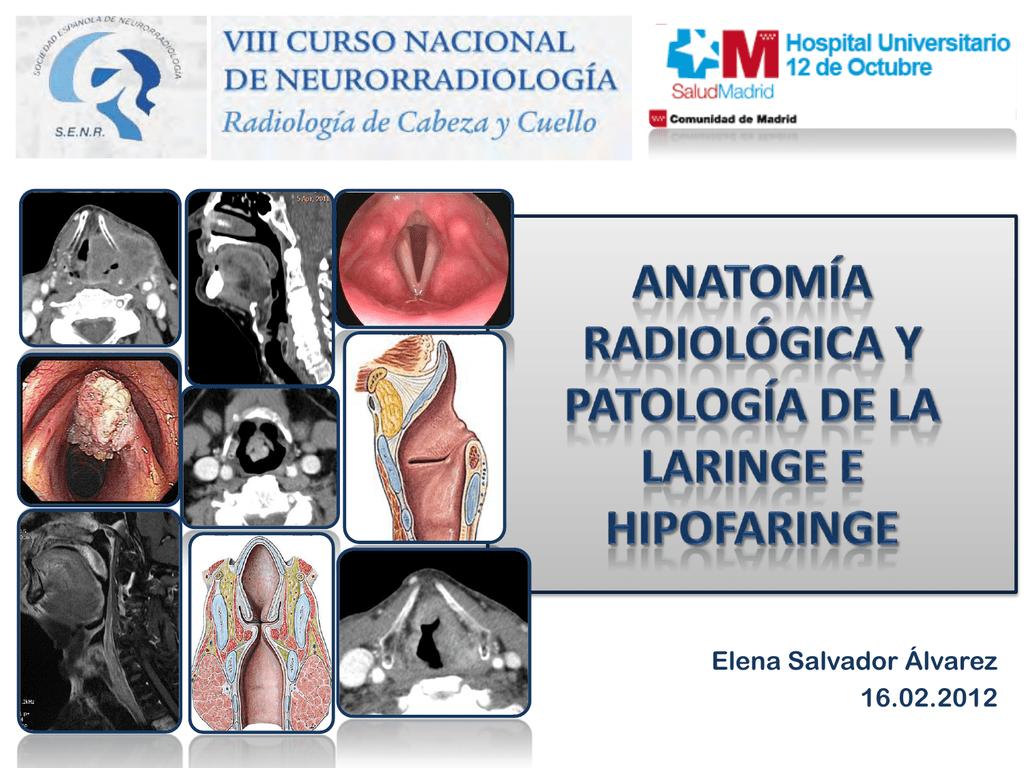 Anatomía Radiológica y Patología de la Laringe e Hipofaringe