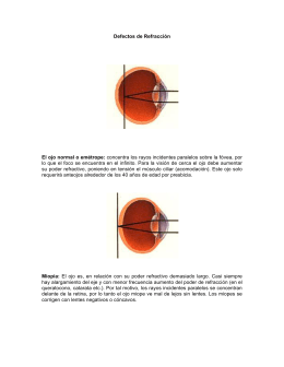 Defectos de Refracción El ojo normal o emétrope: concentra los