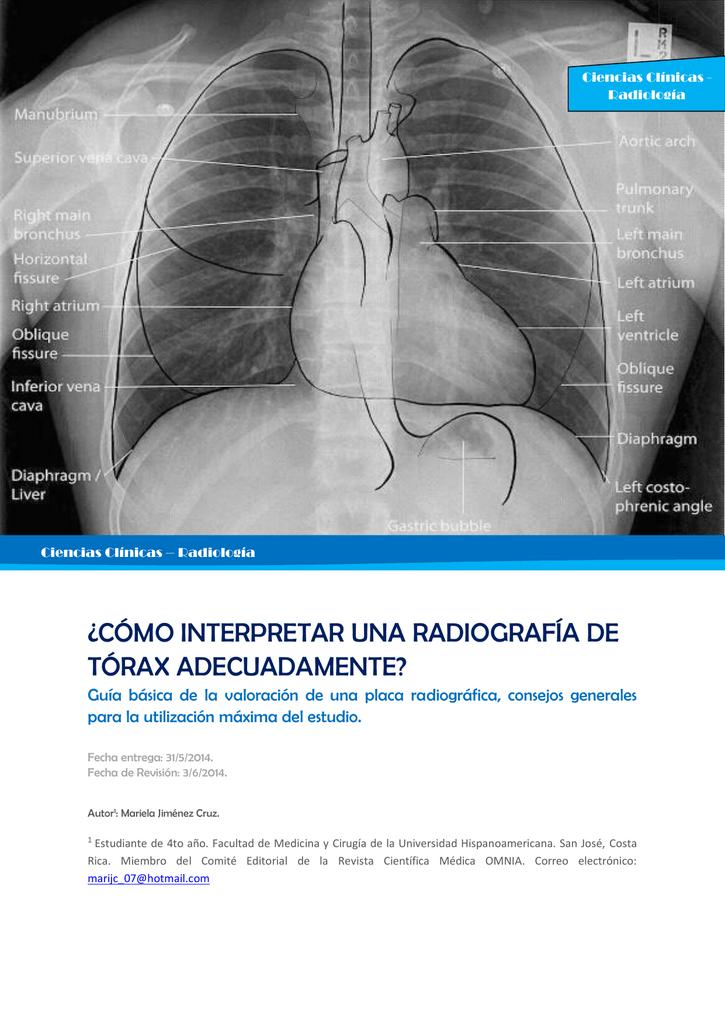¿cómo interpretar una radiografía de tórax adecuadamente?
