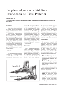 Pie plano adquirido del adulto-insuficiencia del tibial posterior