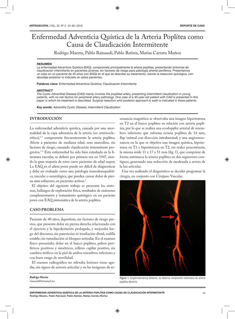 Enfermedad Adventicia Quística de la Arteria Poplítea como Causa