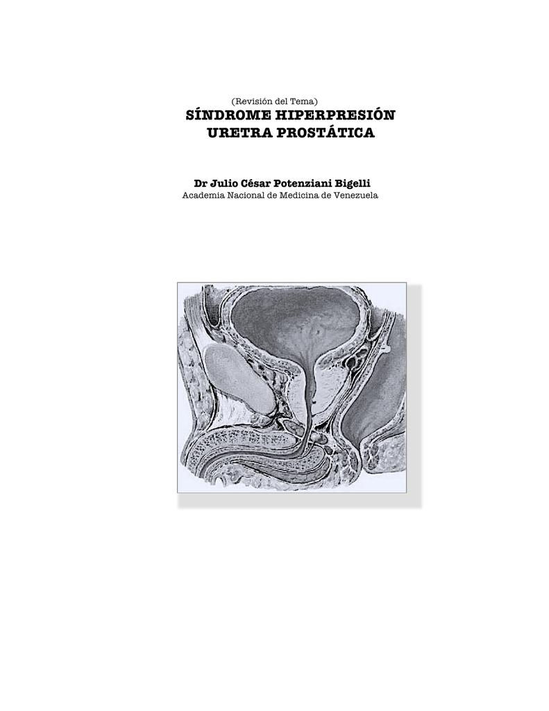 Sindrome vejiga hiperactiva pdf