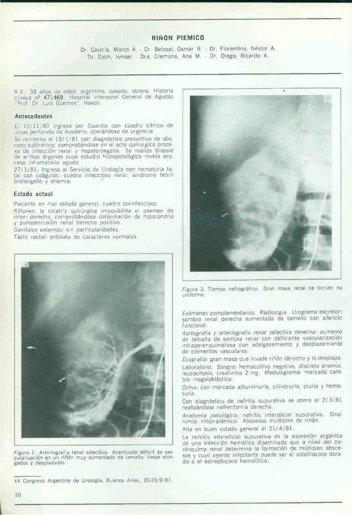 RIÑON PIEMICO Dr. Castría, Marco A. - Dr, Belossi, Osmar R.