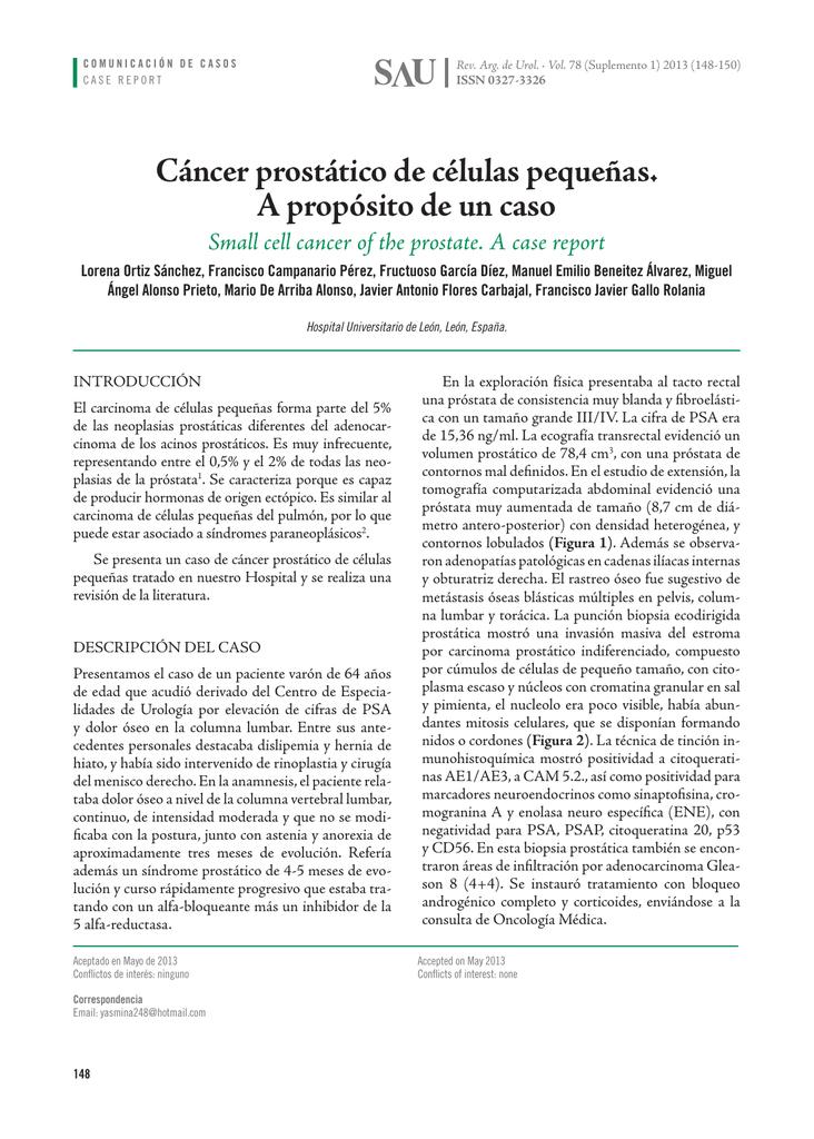 contornos patología carcinoma de células pequeñas