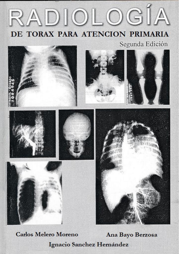 Radiologia de Torax para Atencion Primaria