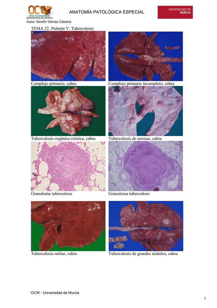TEMA 22. Pulmón V. Tuberculosis Complejo primario, cabra