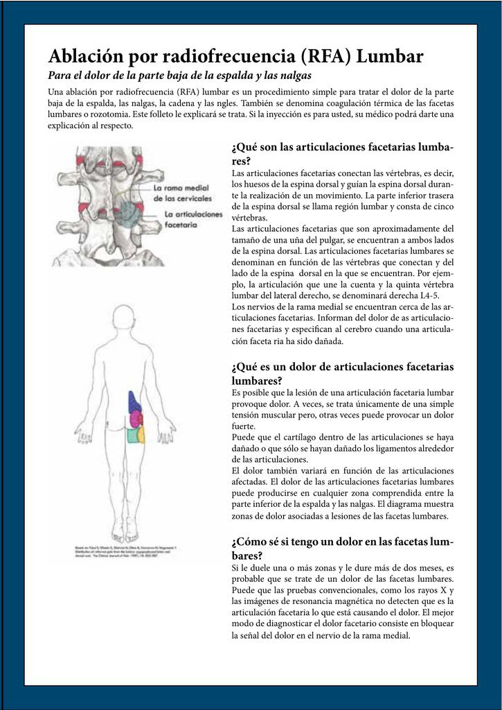 Ablación por radiofrecuencia (RFA) Lumbar
