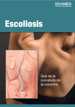 Escoliosis - Veterans Health Library