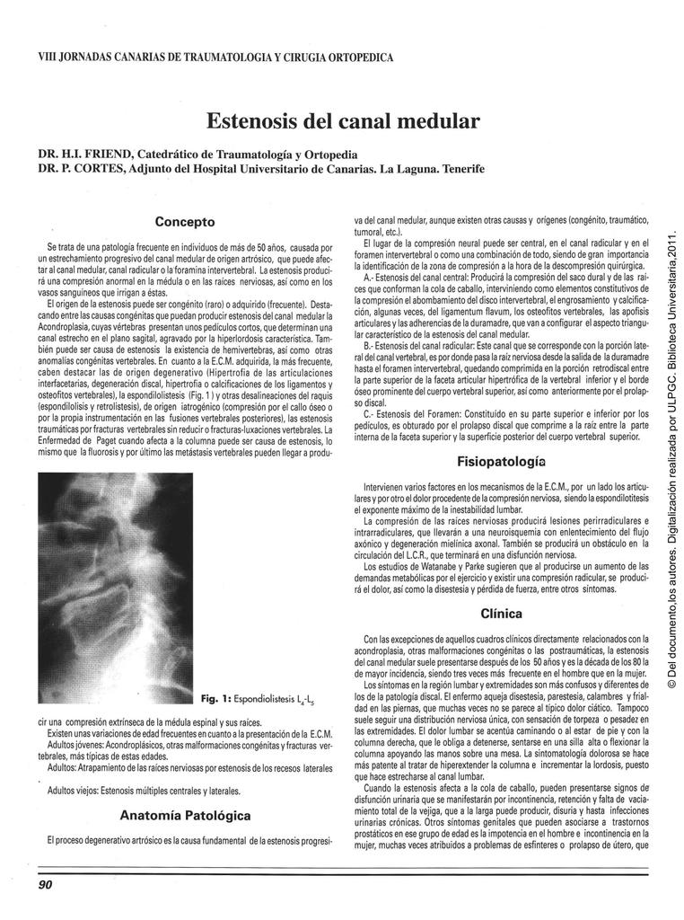 la estinosis espinal puede causar impotencia