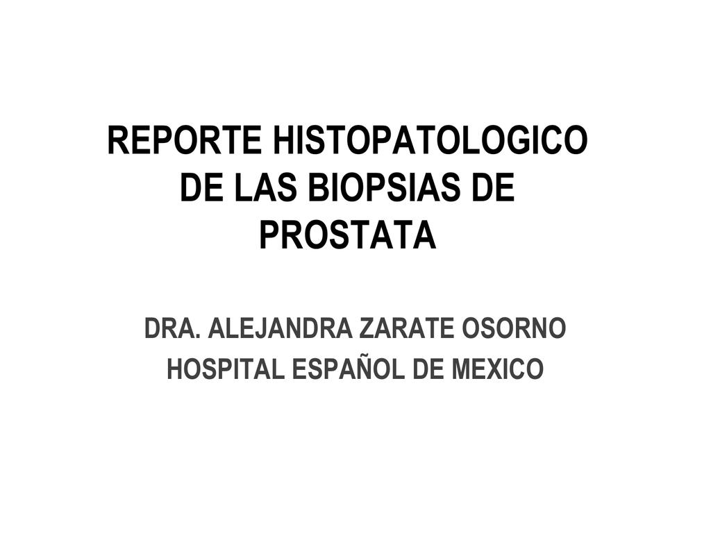 foco asap prostata