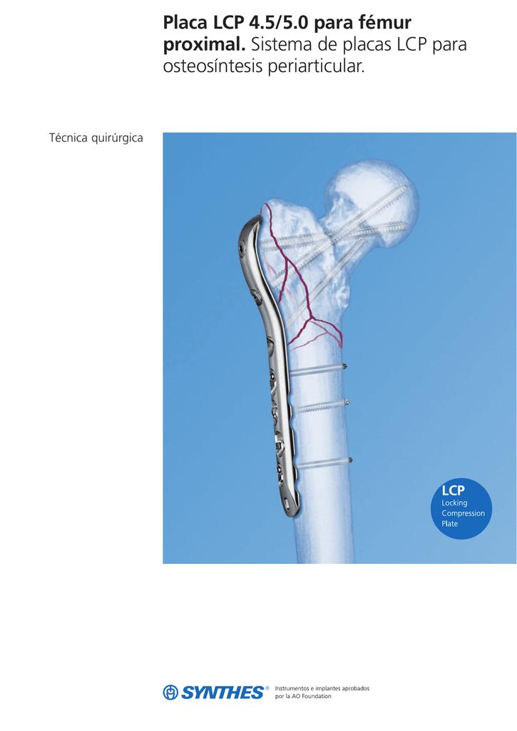 Placa LCP 4.5/5.0 para fémur proximal. Sistema de placas LCP para