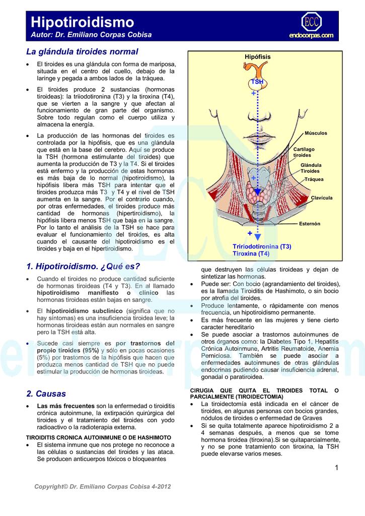 Hipotiroidismo de hashimoto que es