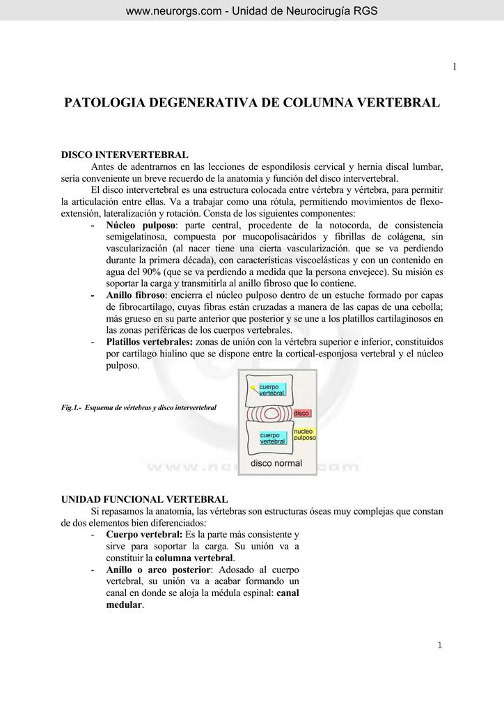 espondilosis cervical - Unidad de Neurocirugía RGS