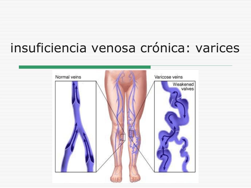 insuficiencia venosa crónica: varices