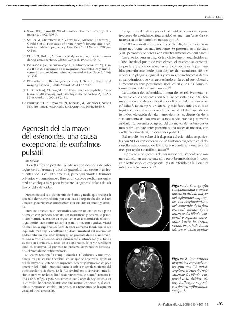 agenesia tiroides