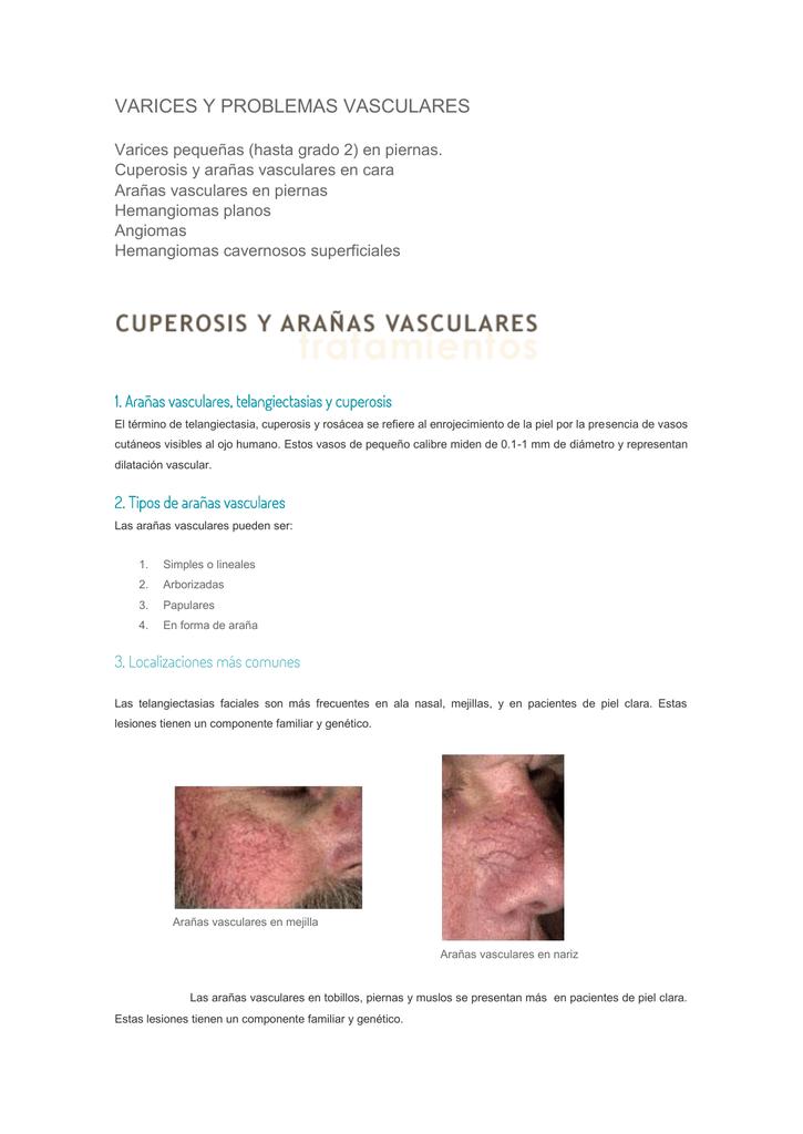 Problema vascular en la cara