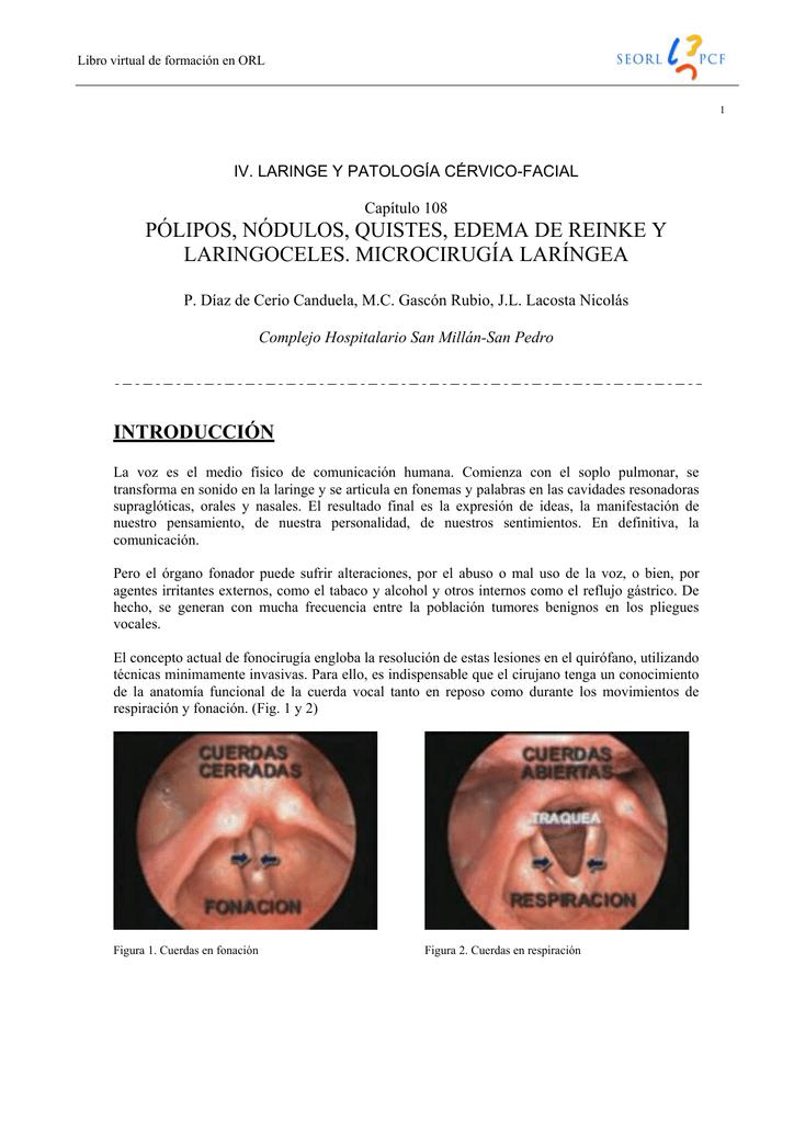 Edema en cuerdas vocales tratamiento
