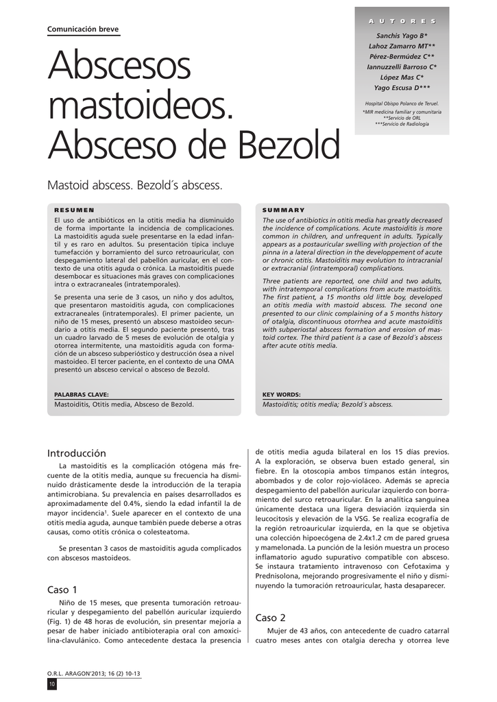 Abscesos mastoideos  Absceso de Bezold