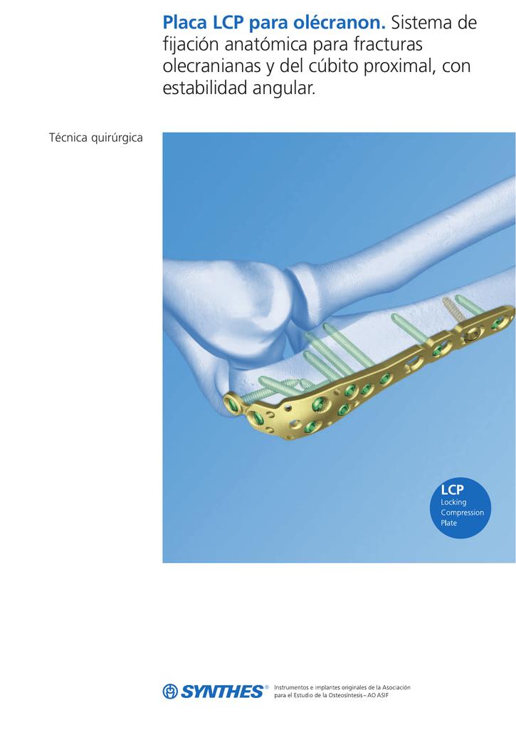Placa LCP para olécranon. Sistema de fijación anatómica para